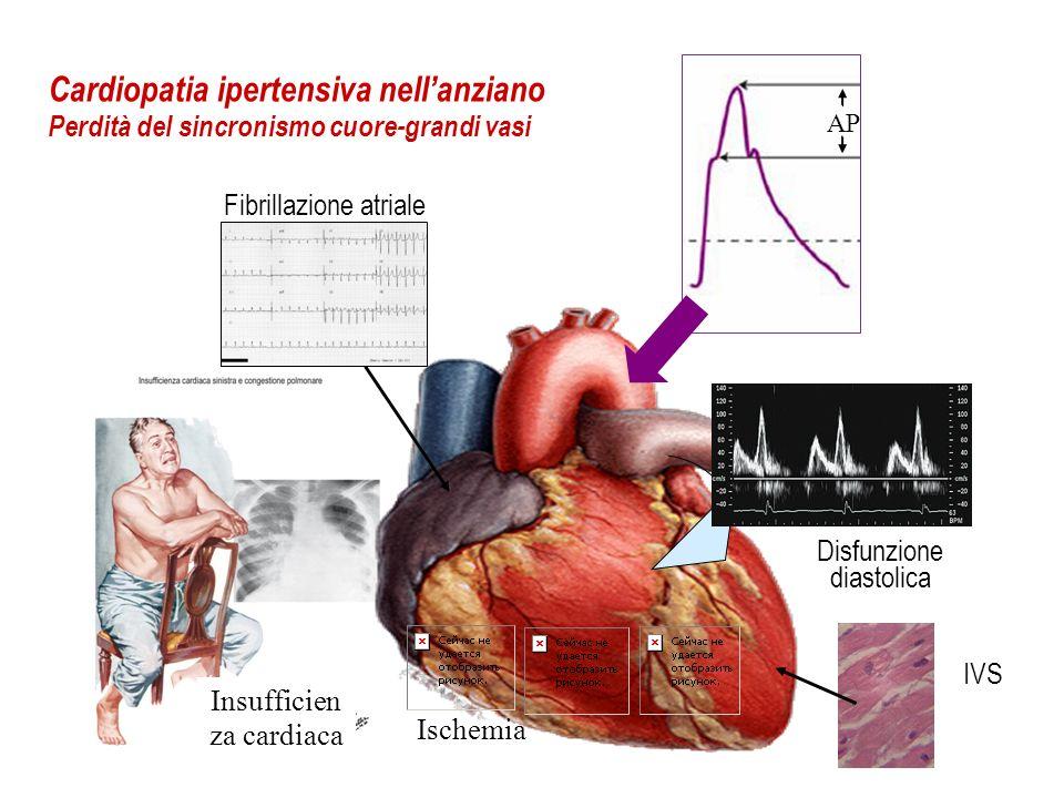 Insufficien za cardiaca IVS Disfunzione diastolica Cardiopatia ipertensiva nellanziano Perdità del sincronismo cuore-grandi vasi Fibrillazione atriale