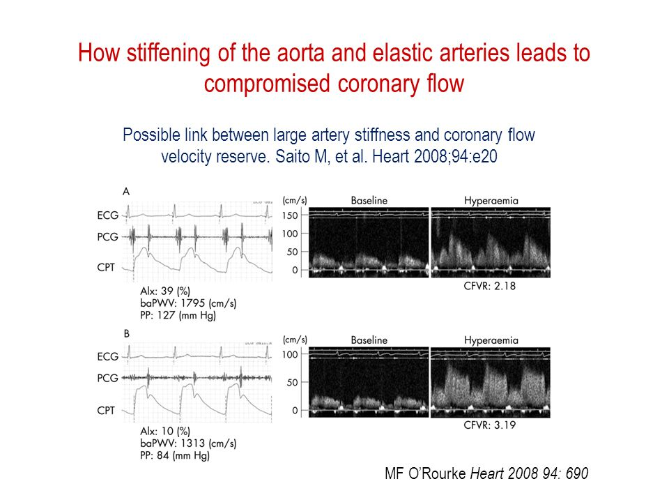 How stiffening of the aorta and elastic arteries leads to compromised coronary flow MF ORourke Heart 2008 94: 690 Possible link between large artery stiffness and coronary flow velocity reserve.