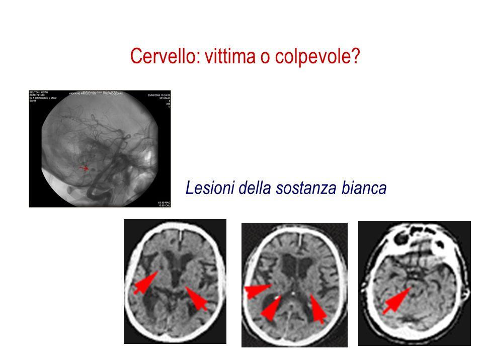 Lesioni della sostanza bianca Cervello: vittima o colpevole?