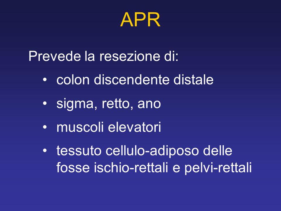 Prevede la resezione di: colon discendente distale sigma, retto, ano muscoli elevatori tessuto cellulo-adiposo delle fosse ischio-rettali e pelvi-rettali APR