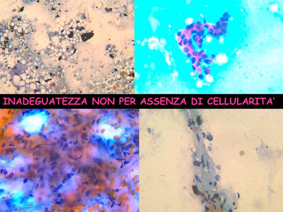 CA MICROINVASIVO CARCINOMA DUTTALE IN SITU G1 CON FOCOLAI MULTIPLI DI MICROINVASIONE pTmic MICRO- INVASIONE DELLO STROMA IN CARCINOMA DUTTALE G1 micro