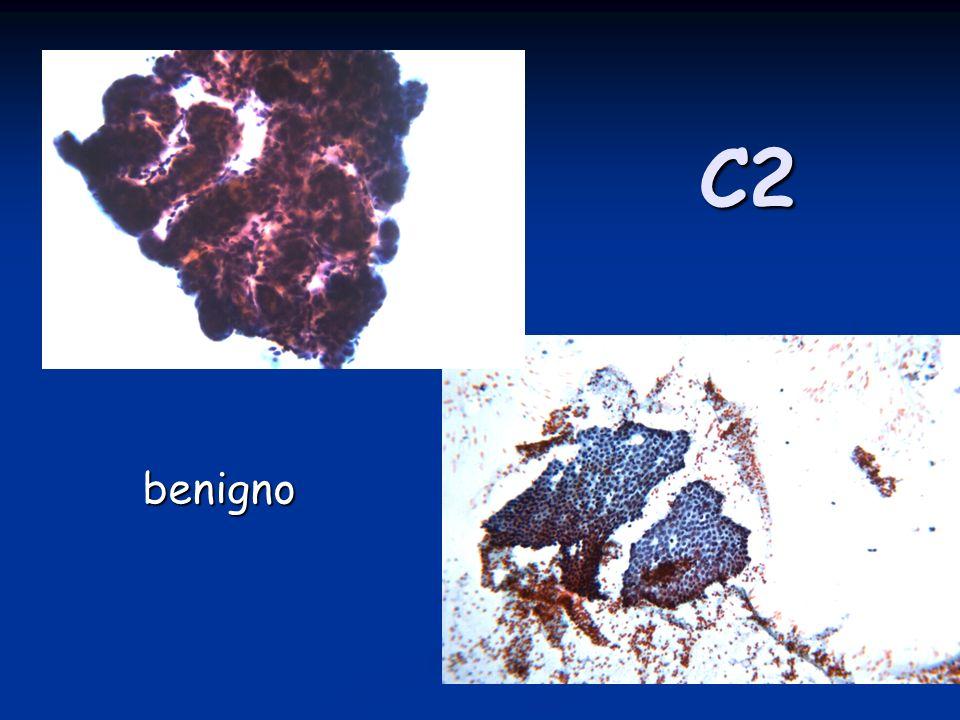 C2 benigno