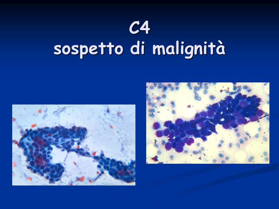 C5 CTM Carcinoma duttale ben differenziato con aspetti tubulari