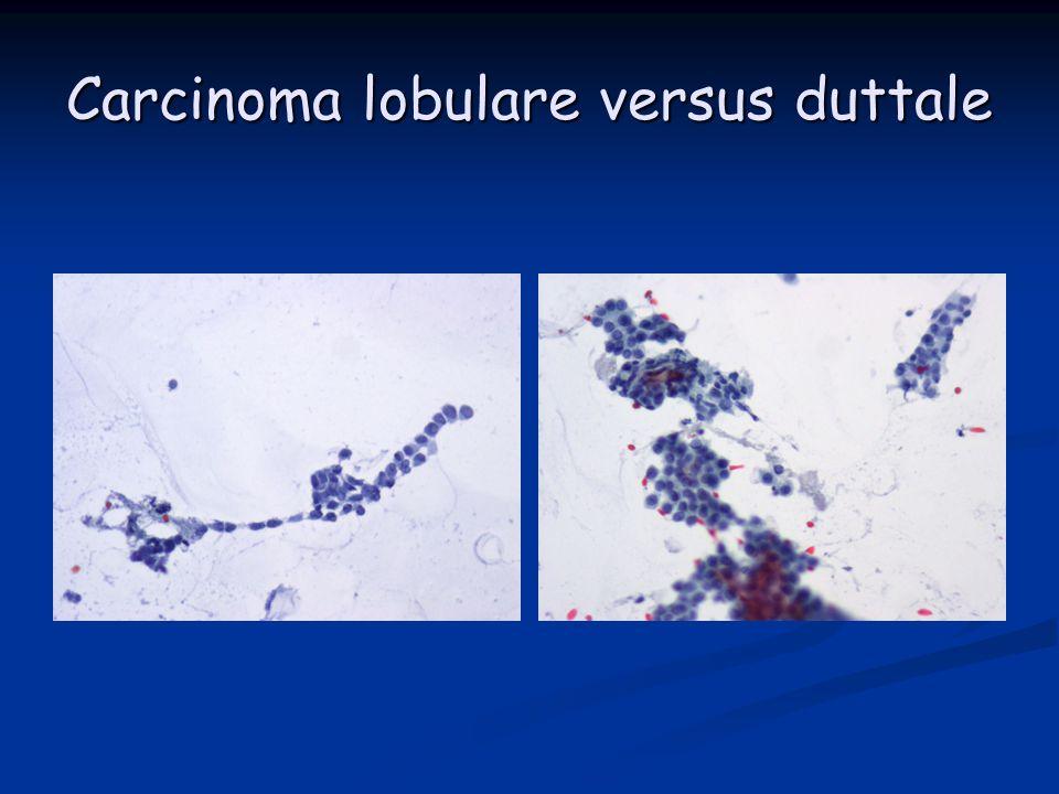 Carcinoma lobulare versus duttale