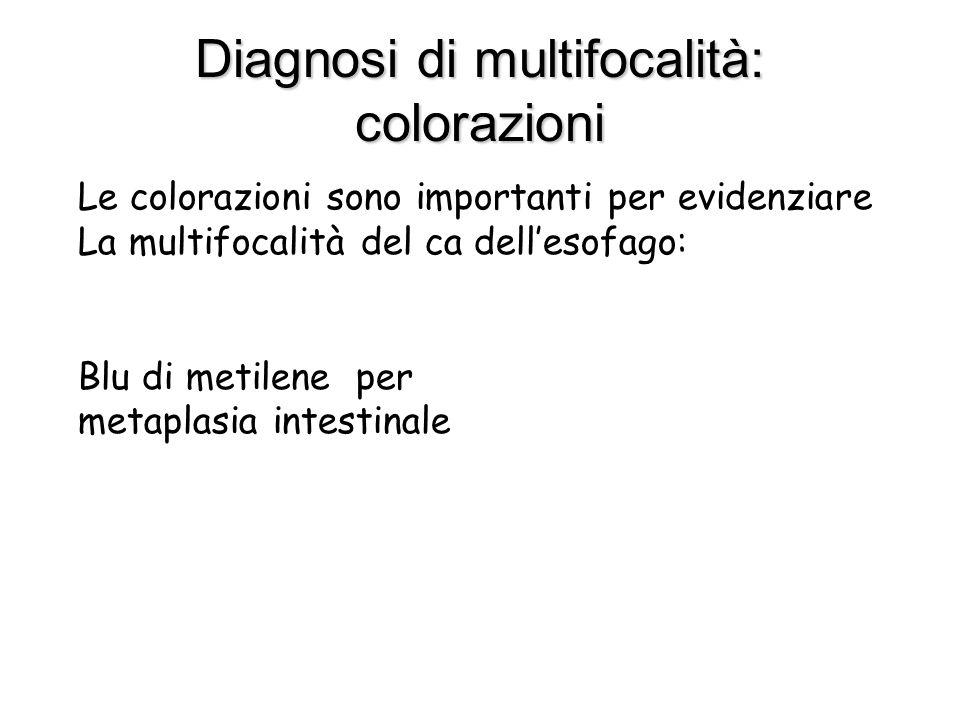 Diagnosi di multifocalità: colorazioni Le colorazioni sono importanti per evidenziare La multifocalità del ca dellesofago: Blu di metilene per metapla