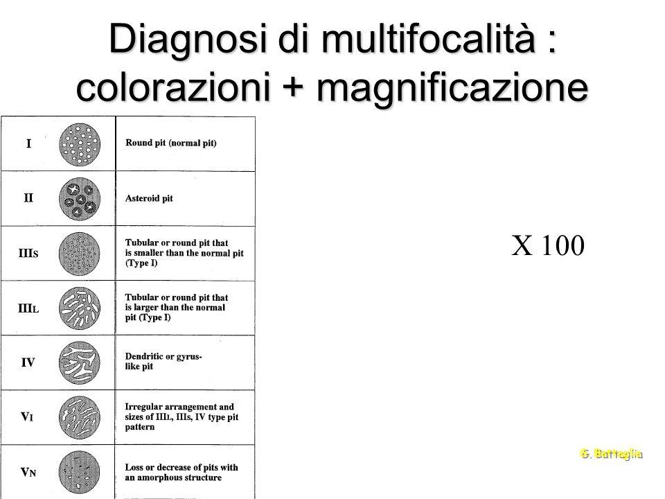 Diagnosi di multifocalità : colorazioni + magnificazione G. Battaglia X 100