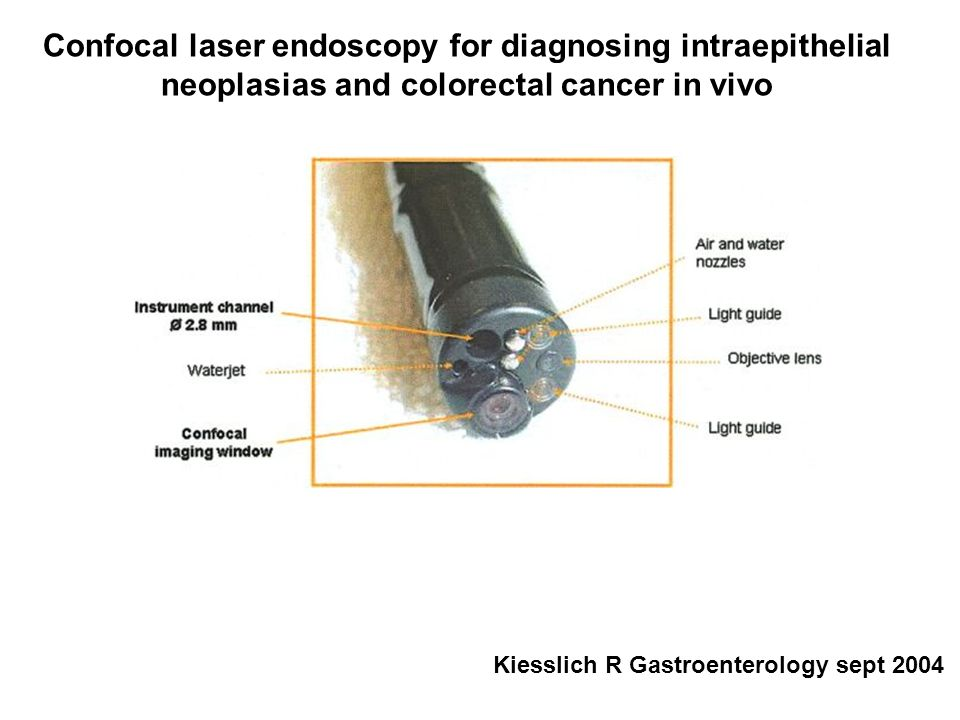 Confocal laser endoscopy for diagnosing intraepithelial neoplasias and colorectal cancer in vivo Kiesslich R Gastroenterology sept 2004