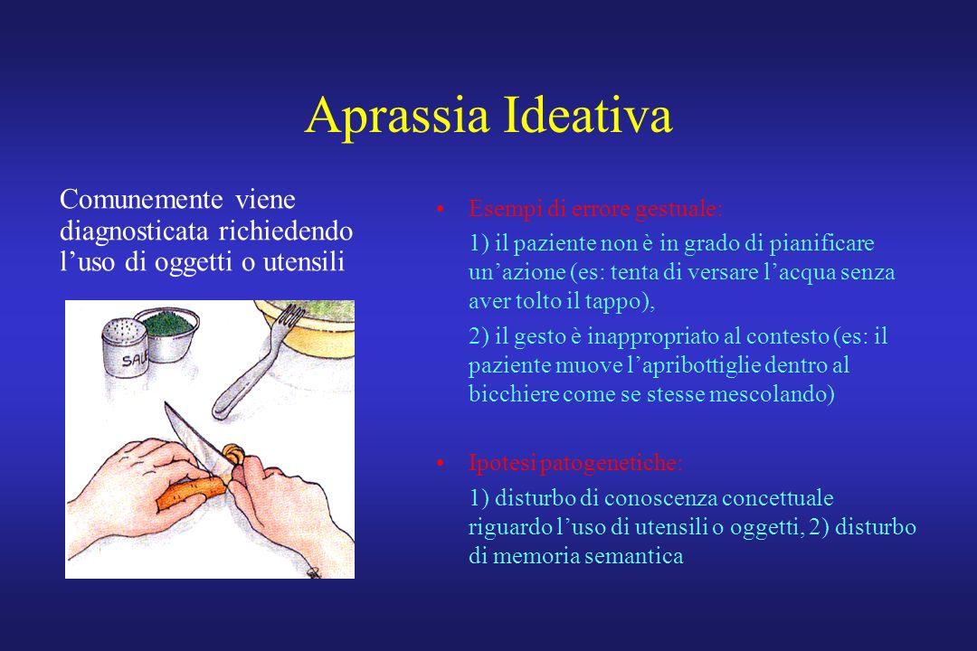 Aprassia Ideativa Esempi di errore gestuale: 1) il paziente non è in grado di pianificare unazione (es: tenta di versare lacqua senza aver tolto il ta