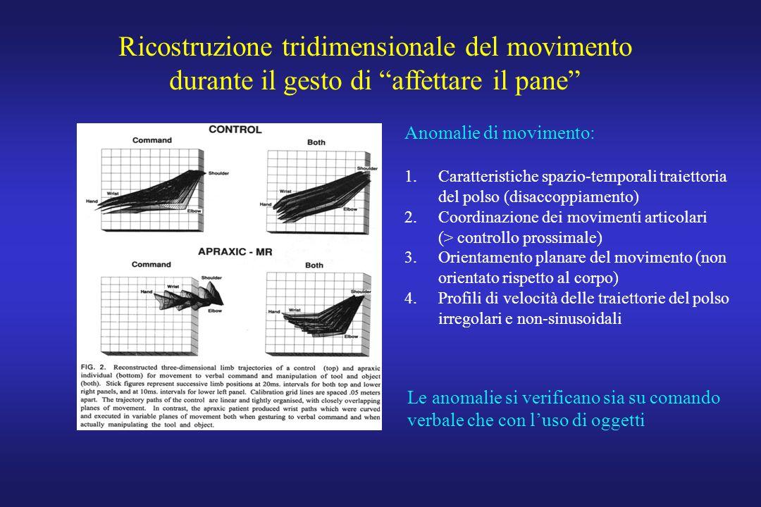 Ricostruzione tridimensionale del movimento durante il gesto di affettare il pane Anomalie di movimento: 1.Caratteristiche spazio-temporali traiettoria del polso (disaccoppiamento) 2.Coordinazione dei movimenti articolari (> controllo prossimale) 3.Orientamento planare del movimento (non orientato rispetto al corpo) 4.Profili di velocità delle traiettorie del polso irregolari e non-sinusoidali Le anomalie si verificano sia su comando verbale che con luso di oggetti