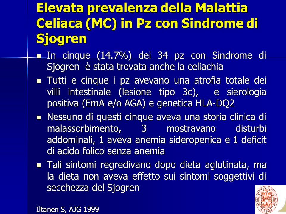 Elevata prevalenza della Malattia Celiaca (MC) in Pz con Sindrome di Sjogren In cinque (14.7%) dei 34 pz con Sindrome di Sjogren è stata trovata anche