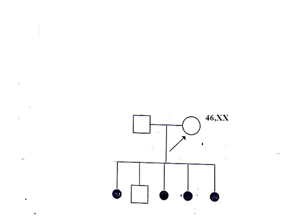 TRASLOCAZIONE RECIPROCA 46,XX 46,XY, t(1;15) (q21;p13)
