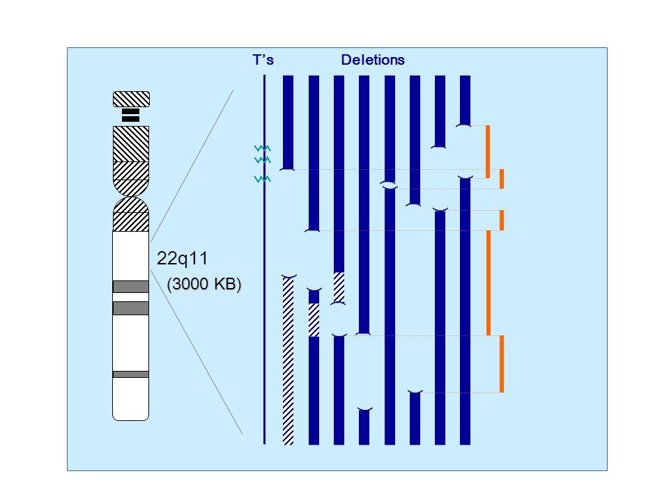 TsDeletions 22q11 ( ( ( ( ( ( ( ( ( ( ( ( ( ( ( ( (3000 KB)