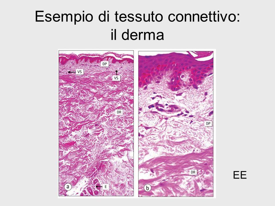 Esempio di tessuto connettivo: il derma EE