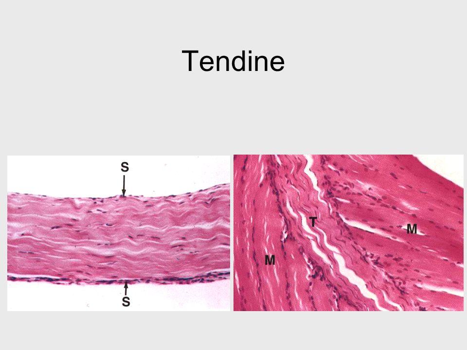 Tendine