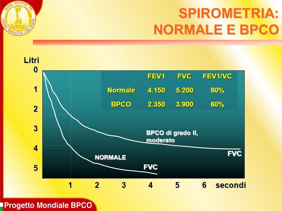 5 0 1 2 3 4 123456 FVC FVC BPCO di grado II, moderato NORMALE secondi LitriFEV1FVCFEV1/VCNormale4.1505.20080% BPCO2.3503.90060% SPIROMETRIA: NORMALE E BPCO
