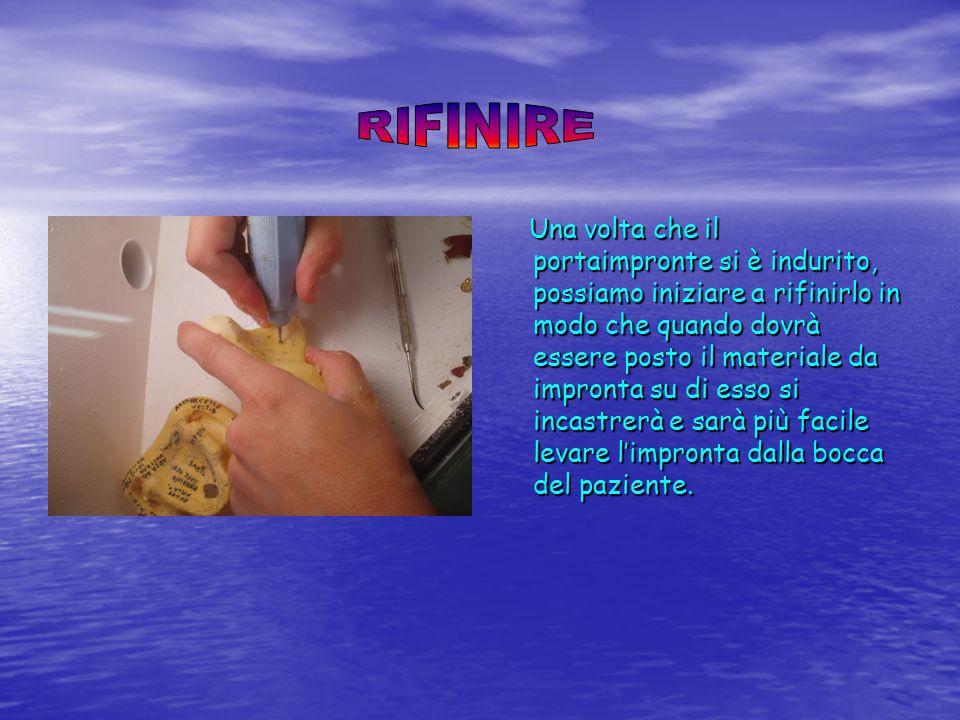 Una volta che il portaimpronte si è indurito, possiamo iniziare a rifinirlo in modo che quando dovrà essere posto il materiale da impronta su di esso