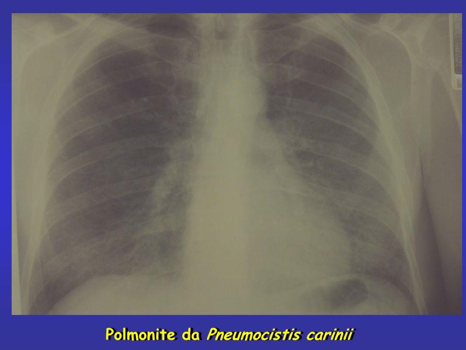 Polmonite da Pneumocistis carinii