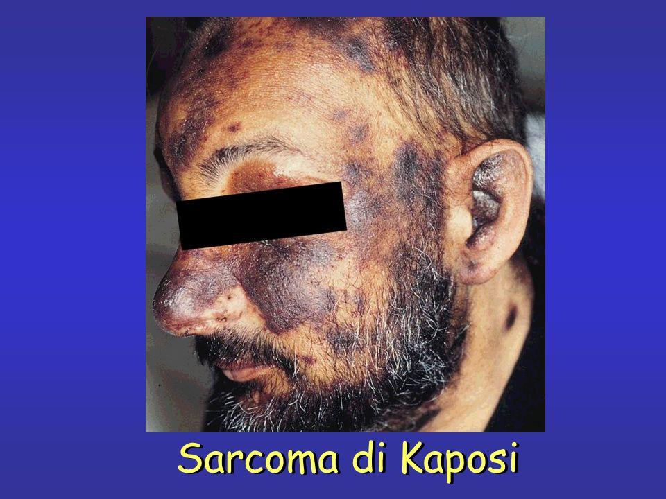 Sarcoma di Kaposi