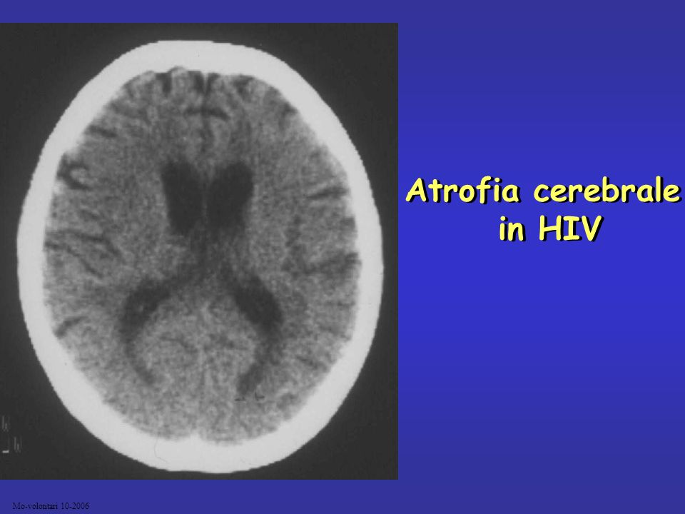Mo-volontari 10-2006 Atrofia cerebrale in HIV Atrofia cerebrale in HIV
