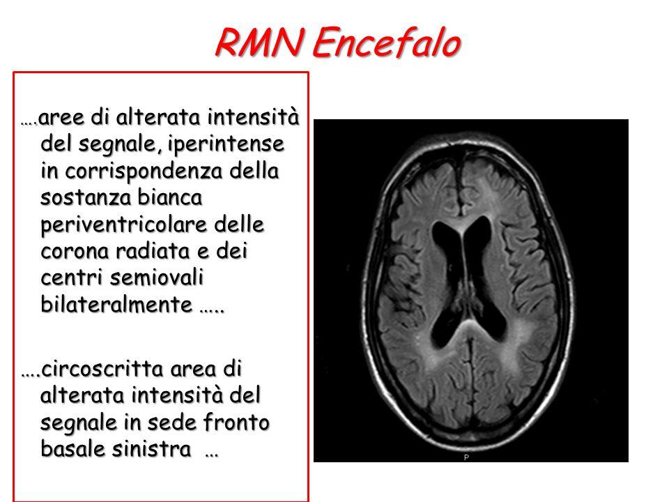 RMN Encefalo …. aree di alterata intensità del segnale, iperintense in corrispondenza della sostanza bianca periventricolare delle corona radiata e de