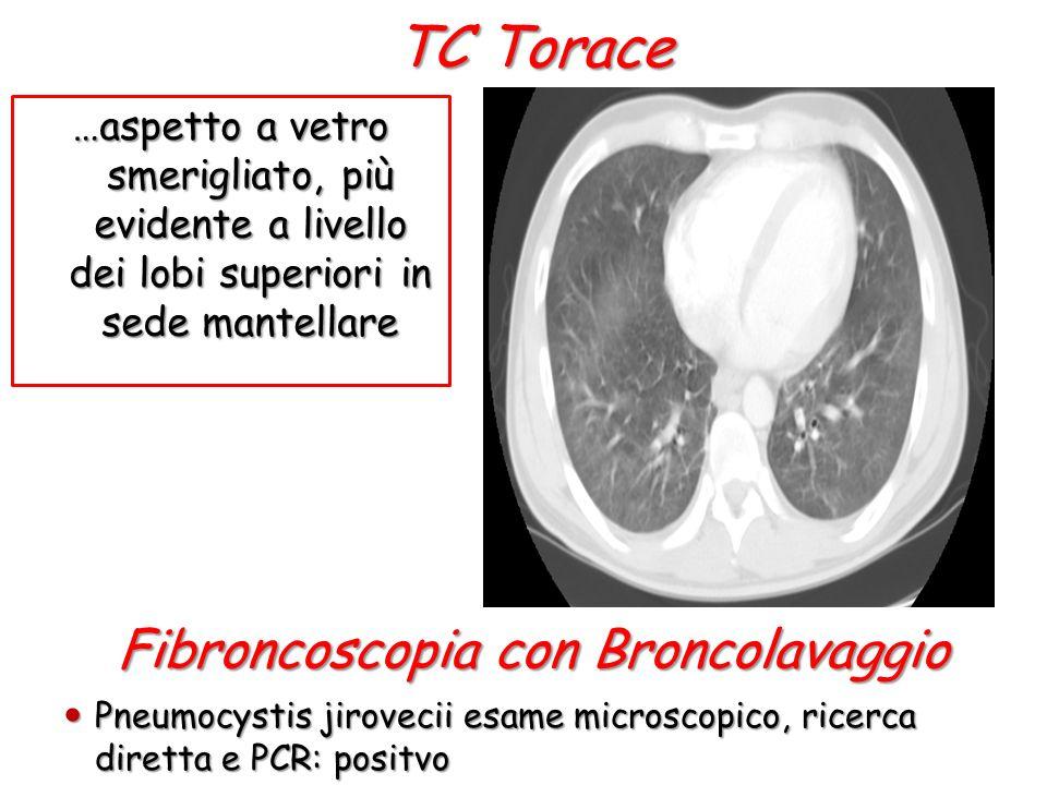 TC Torace …aspetto a vetro smerigliato, più evidente a livello dei lobi superiori in sede mantellare Fibroncoscopia con Broncolavaggio Pneumocystis jirovecii esame microscopico, ricerca diretta e PCR: positvo Pneumocystis jirovecii esame microscopico, ricerca diretta e PCR: positvo