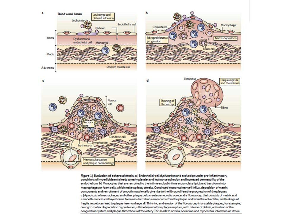 von Andrian UH and Mackay CR N Engl J Med 343, 1020, 2000 L inattivazione di geni codificanti per proteine implicate nel reclutamento monocitario riduce lo sviluppo di Lesioni ateroscelrotiche in topi con inattivazione genica di APOE o LDL-R XX X X X MCP-1 CX3C, CXCR2, CCR2 chain