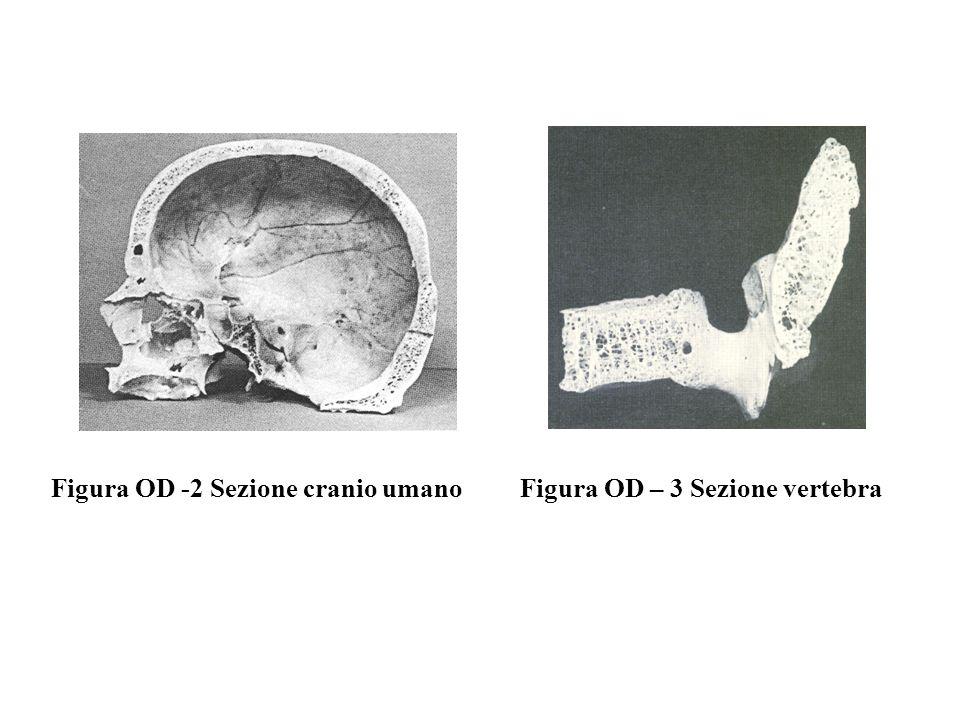Figura OD -2 Sezione cranio umanoFigura OD – 3 Sezione vertebra