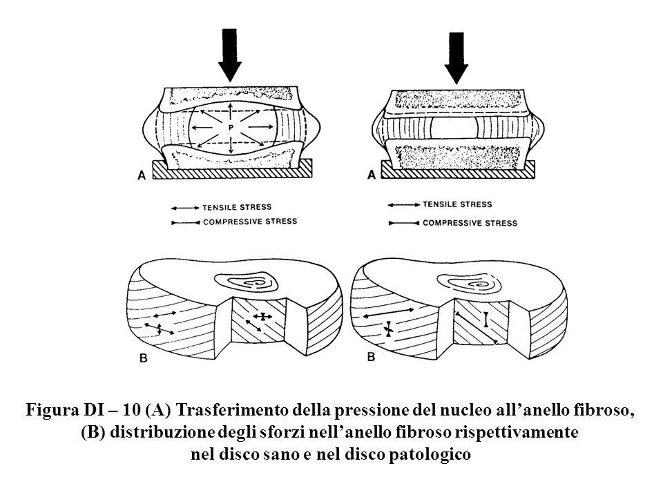 Figura DI – 10 (A) Trasferimento della pressione del nucleo allanello fibroso, (B) distribuzione degli sforzi nellanello fibroso rispettivamente nel d