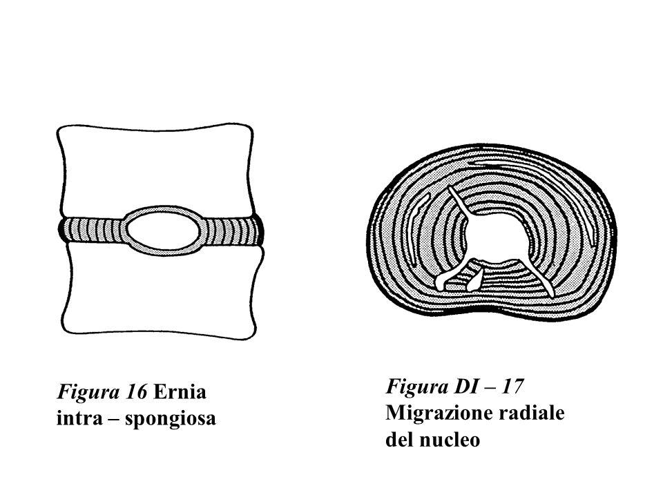 Figura 16 Ernia intra – spongiosa Figura DI – 17 Migrazione radiale del nucleo