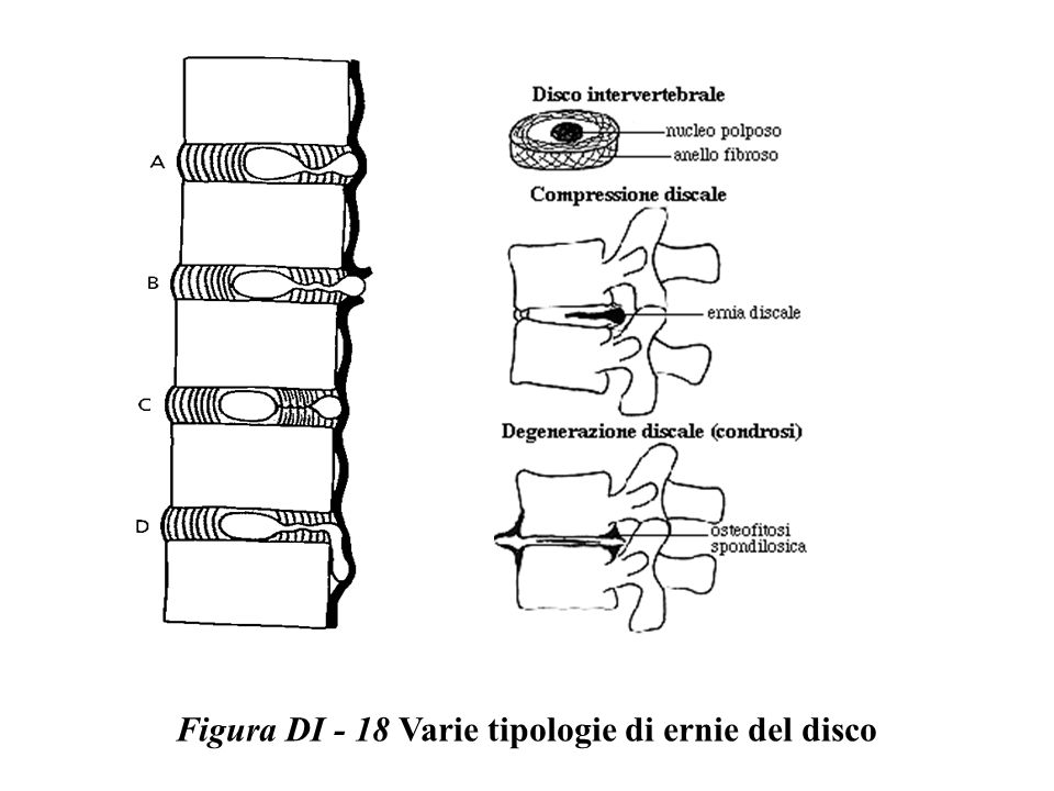 Figura DI - 18 Varie tipologie di ernie del disco
