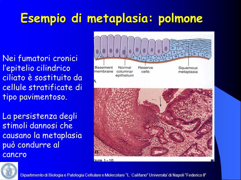 Dipartimento di Biologia e Patologia Cellulare e Molecolare L. Califano Universita di Napoli Federico II Esempio di metaplasia: polmone Nei fumatori c