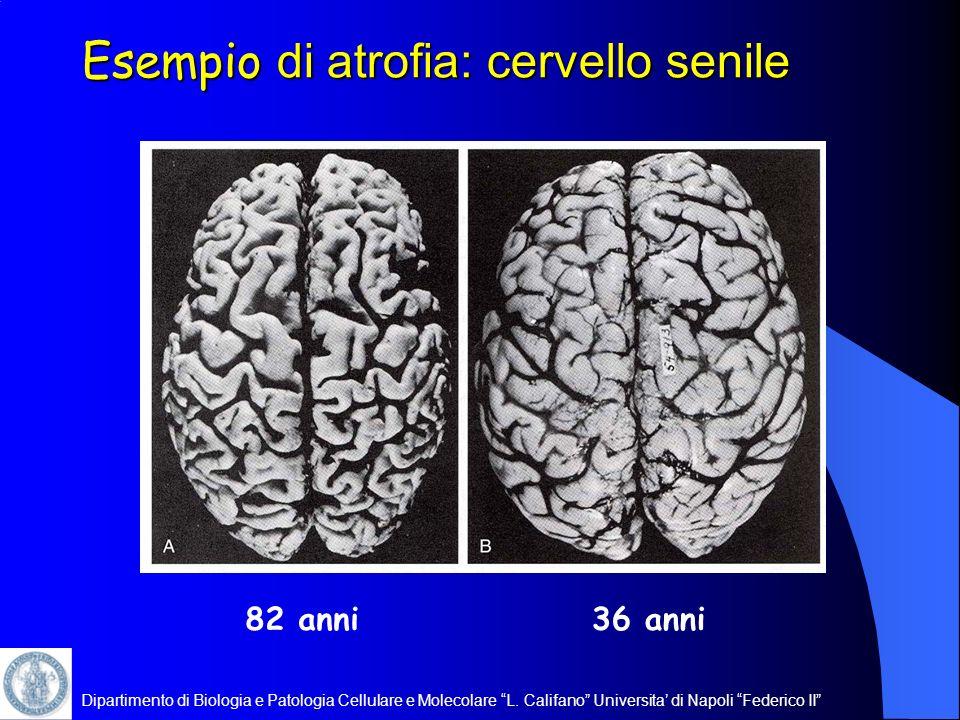 Dipartimento di Biologia e Patologia Cellulare e Molecolare L. Califano Universita di Napoli Federico II Esempio di atrofia: cervello senile 36 anni82