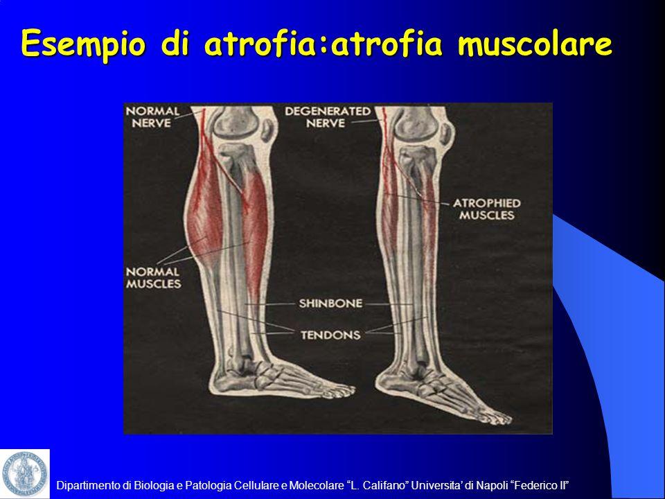 Dipartimento di Biologia e Patologia Cellulare e Molecolare L. Califano Universita di Napoli Federico II Esempio di atrofia:atrofia muscolare
