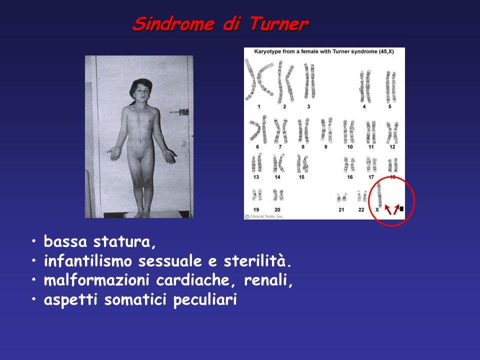 bassa statura, infantilismo sessuale e sterilità. malformazioni cardiache, renali, aspetti somatici peculiari Sindrome di Turner