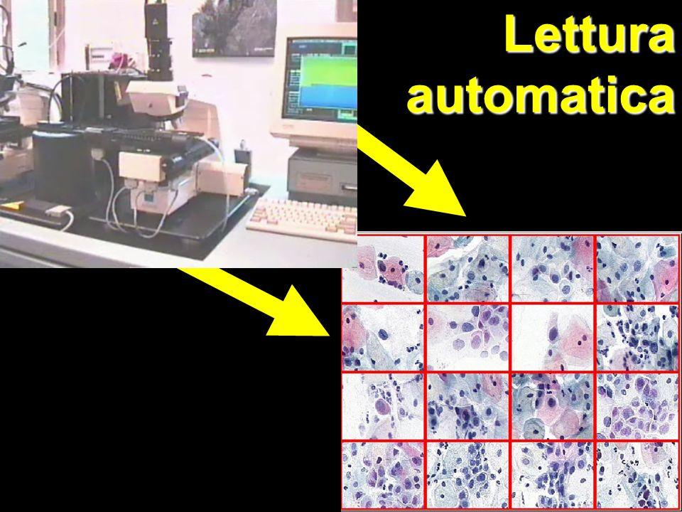 Lettura automatica
