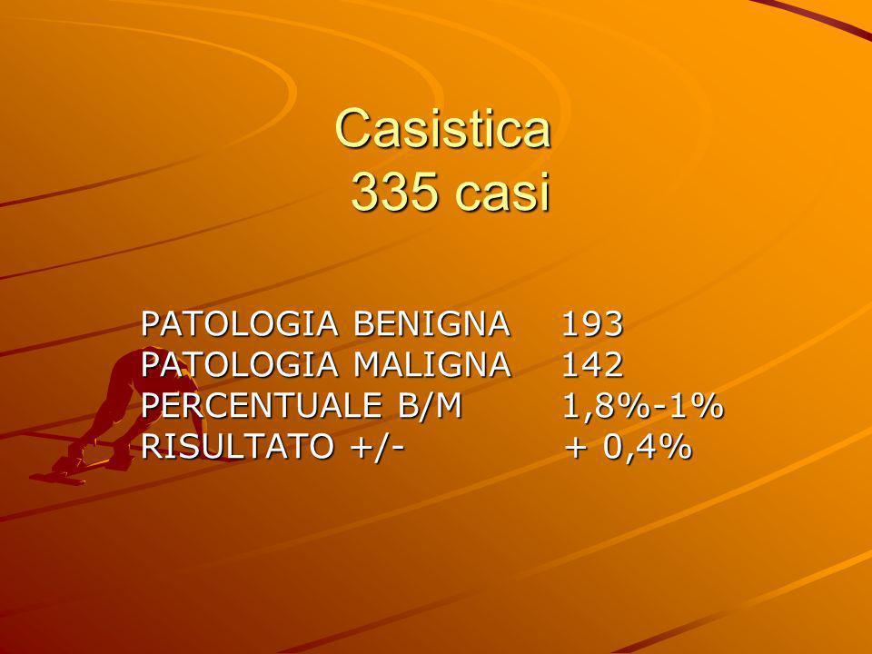 Casistica 335 casi PATOLOGIA BENIGNA 193 PATOLOGIA MALIGNA 142 PERCENTUALE B/M 1,8%-1% RISULTATO +/- + 0,4%