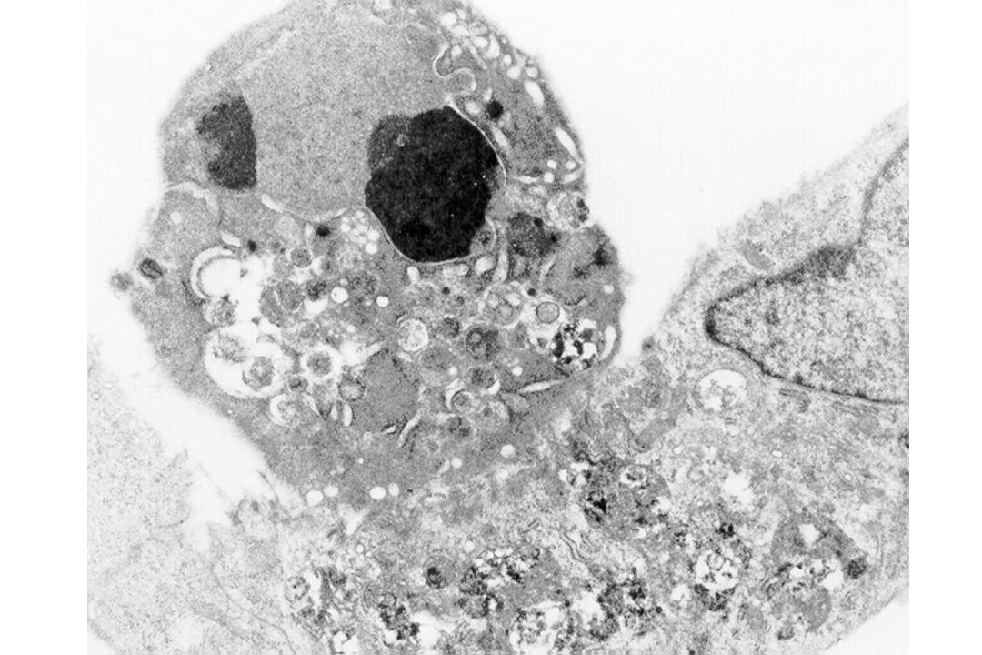 PTPC= complesso dei pori di transizione della permeabilita AIF: Apoptosis Inducing Factor