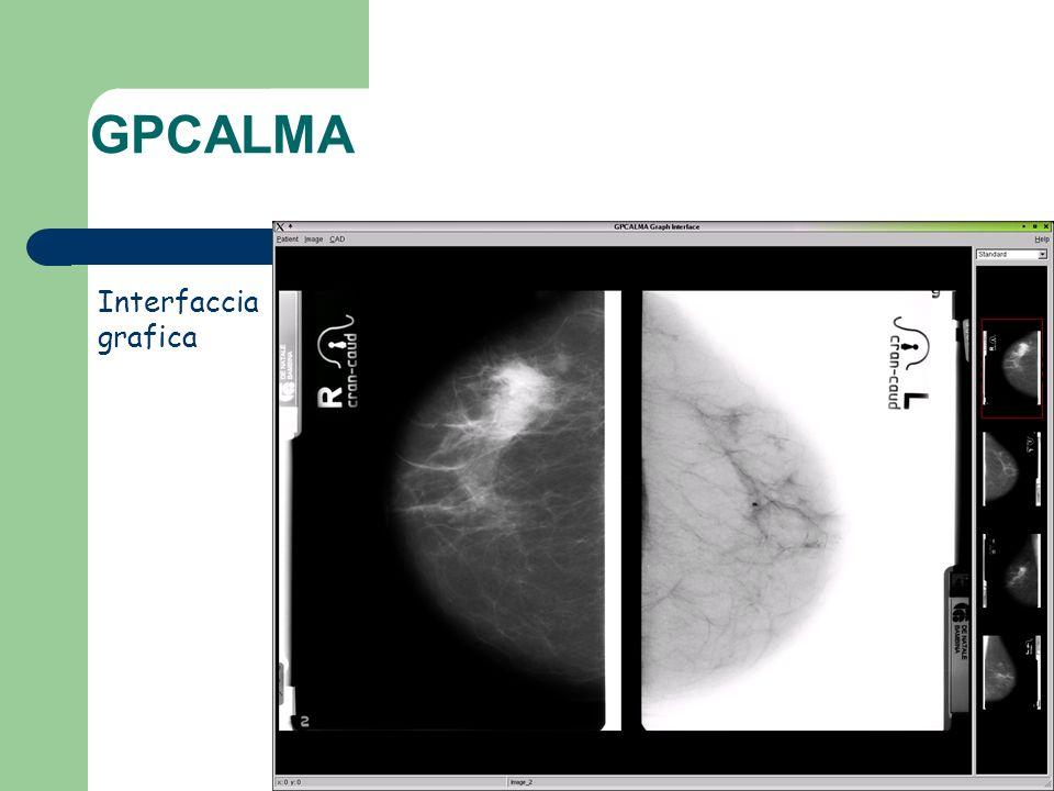 Interfaccia grafica GPCALMA
