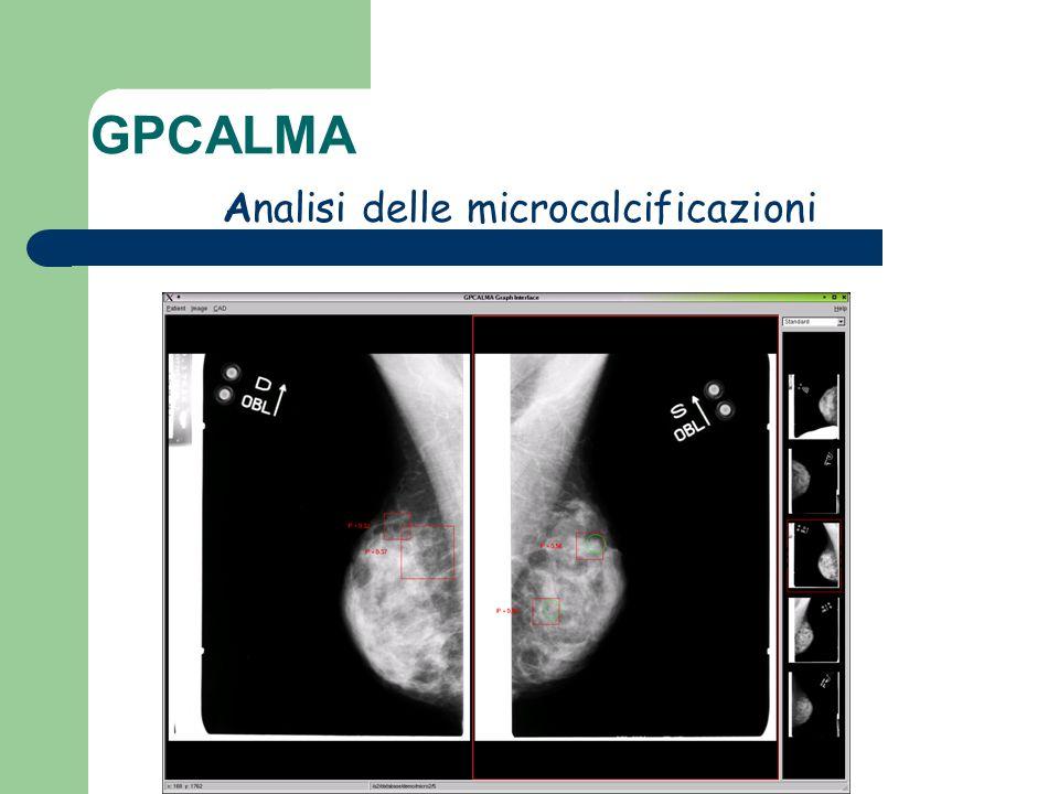 Analisi delle microcalcificazioni GPCALMA