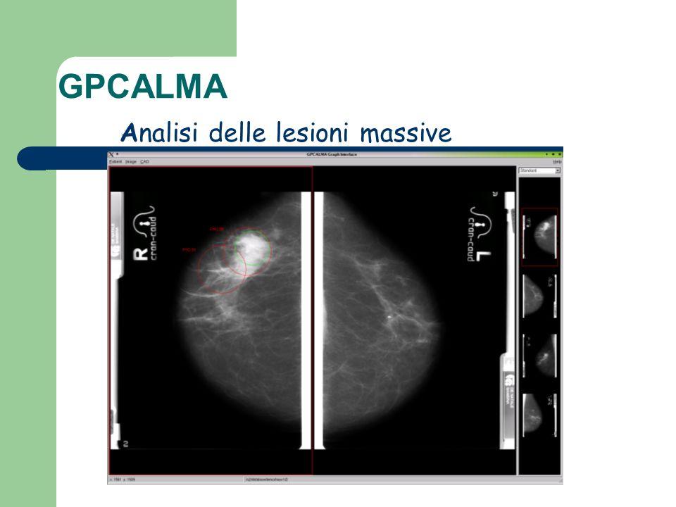 Analisi delle lesioni massive GPCALMA
