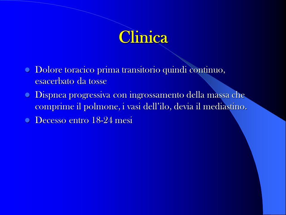Clinica Dolore toracico prima transitorio quindi continuo, esacerbato da tosse Dolore toracico prima transitorio quindi continuo, esacerbato da tosse