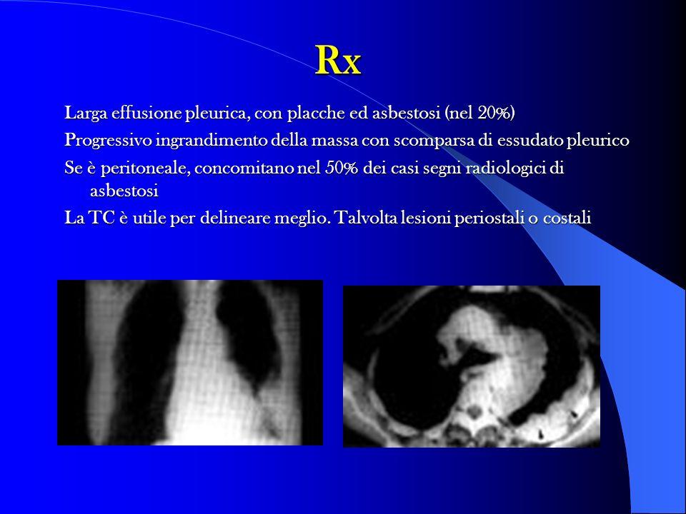 Rx Larga effusione pleurica, con placche ed asbestosi (nel 20%) Progressivo ingrandimento della massa con scomparsa di essudato pleurico Se è peritone