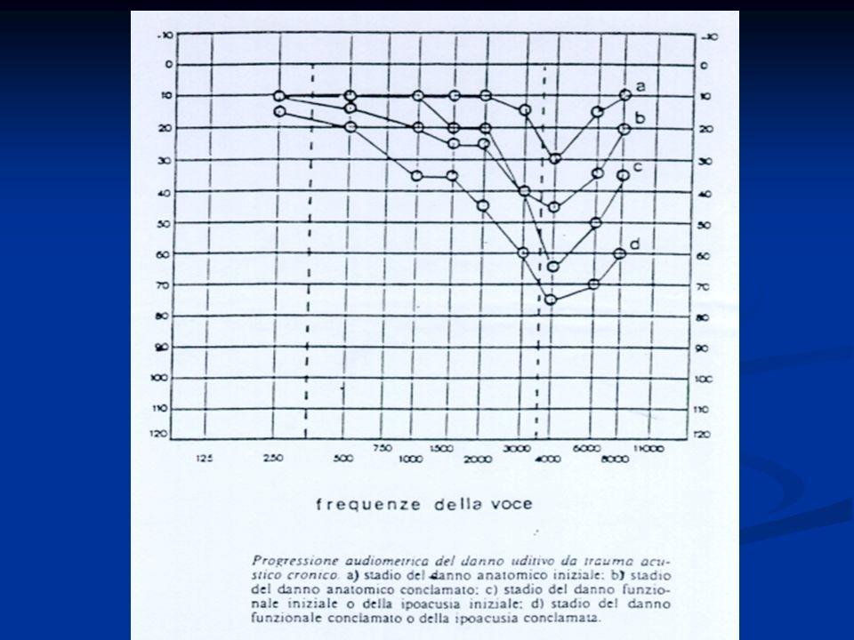 Nel caso di rumore continuo il rischio per loperatore esposto a rumore è una combinazione fra livello di rumorosità e tempo di esposizione.