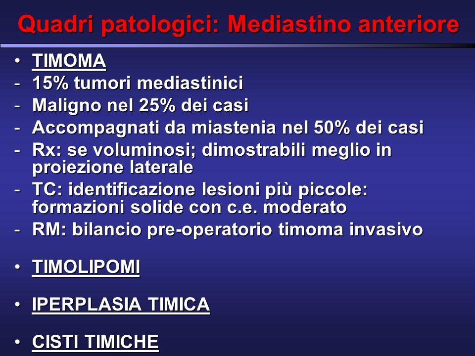 Quadri patologici: Mediastino anteriore TIMOMATIMOMA -15% tumori mediastinici -Maligno nel 25% dei casi -Accompagnati da miastenia nel 50% dei casi -Rx: se voluminosi; dimostrabili meglio in proiezione laterale -TC: identificazione lesioni più piccole: formazioni solide con c.e.