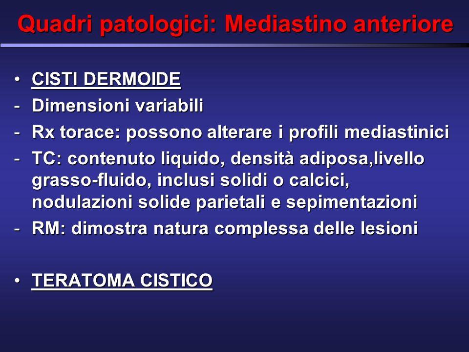 Quadri patologici: Mediastino anteriore CISTI DERMOIDECISTI DERMOIDE -Dimensioni variabili -Rx torace: possono alterare i profili mediastinici -TC: contenuto liquido, densità adiposa,livello grasso-fluido, inclusi solidi o calcici, nodulazioni solide parietali e sepimentazioni -RM: dimostra natura complessa delle lesioni TERATOMA CISTICOTERATOMA CISTICO