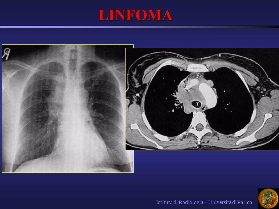 LINFOMA Istituto di Radiologia – Università di Parma