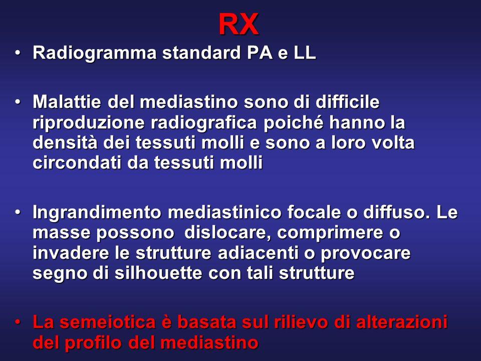 RX Radiogramma standard PA e LLRadiogramma standard PA e LL Malattie del mediastino sono di difficile riproduzione radiografica poiché hanno la densità dei tessuti molli e sono a loro volta circondati da tessuti molliMalattie del mediastino sono di difficile riproduzione radiografica poiché hanno la densità dei tessuti molli e sono a loro volta circondati da tessuti molli Ingrandimento mediastinico focale o diffuso.