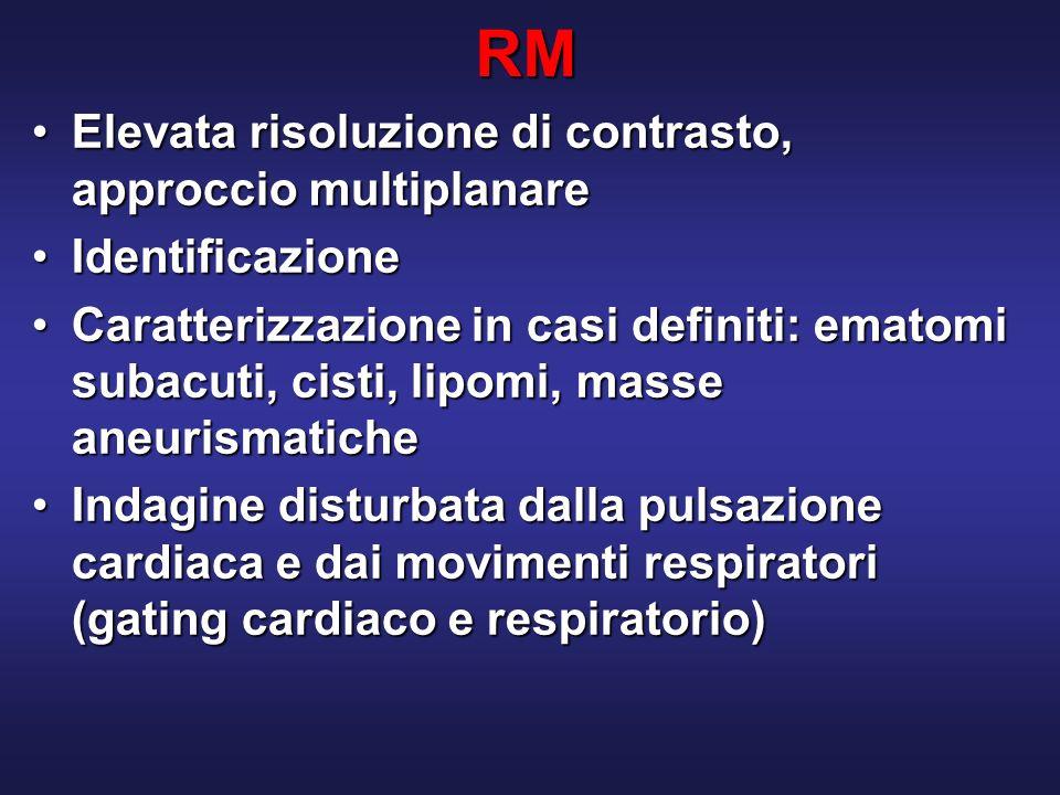RM Elevata risoluzione di contrasto, approccio multiplanareElevata risoluzione di contrasto, approccio multiplanare IdentificazioneIdentificazione Caratterizzazione in casi definiti: ematomi subacuti, cisti, lipomi, masse aneurismaticheCaratterizzazione in casi definiti: ematomi subacuti, cisti, lipomi, masse aneurismatiche Indagine disturbata dalla pulsazione cardiaca e dai movimenti respiratori (gating cardiaco e respiratorio)Indagine disturbata dalla pulsazione cardiaca e dai movimenti respiratori (gating cardiaco e respiratorio)
