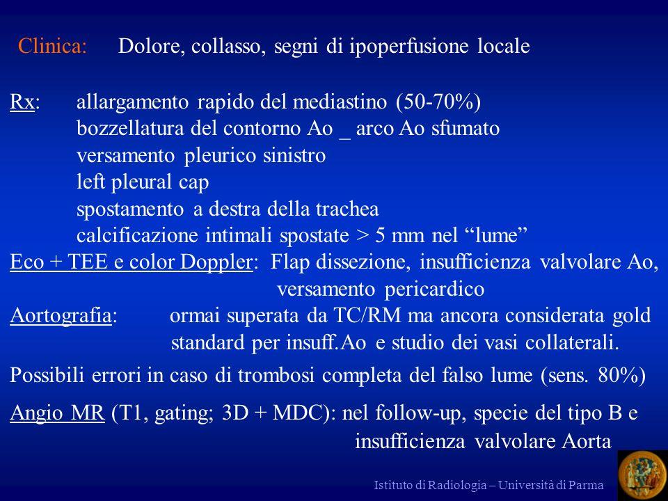 Istituto di Radiologia – Università di Parma TC a vuoto + angio TC ms + mdc tecnica di base sensib e specif.circa 100% Definisce:vero e falso lume (doppio lume) flap intimale compressione vero lume; ispessimento parete tipo A e B spostamento calcificazioni intimali punto di rientro insufficienza valvolare aortica stato delle AA collaterali (coronarie, AA epiaortiche, mesenteriche, renali) estensione nellAorta addominale emopericardio emotorace; ematoma mediastinico trombosi falso lume (se completa, semiluna attorno al vero lume)