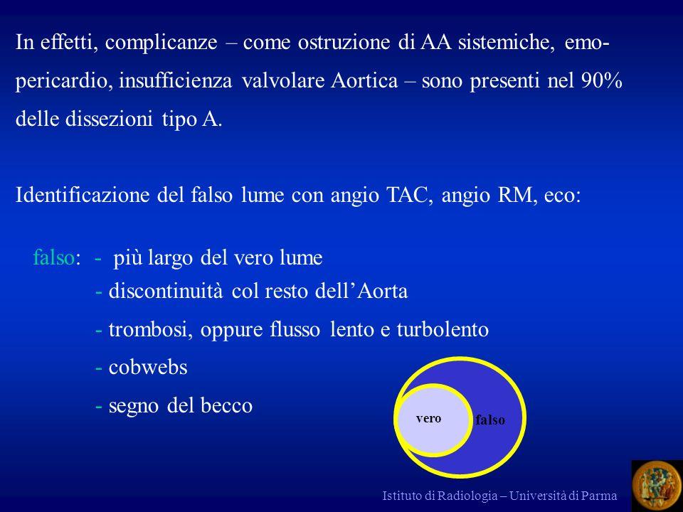 Istituto di Radiologia – Università di Parma In effetti, complicanze – come ostruzione di AA sistemiche, emo- pericardio, insufficienza valvolare Aortica – sono presenti nel 90% delle dissezioni tipo A.